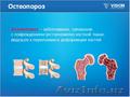 БАД ОстеоСанум (OsteoSanum). Остеопороз костей - симптомы. Препараты для укрепле