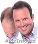 Загуститель волос Dermmatch